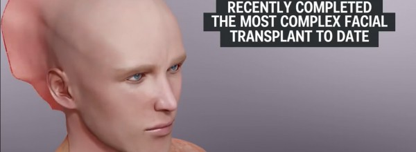 The most newest and complex FACE TRANSPLANT