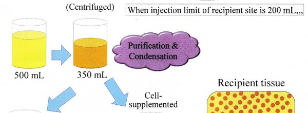 Condensation of Tissue and Stem Cells for Fat Grafting